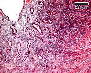Endometrium histology proliferative Proliferative Endometrium: