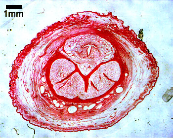 histologia penisa