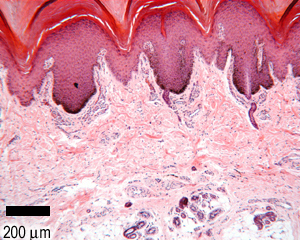 The Histology Guide | Skin
